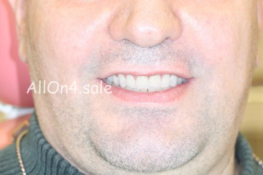 """Фото ПОСЛЕ – Пациент Б. – """"Все зубы за один день"""" верх и низ"""