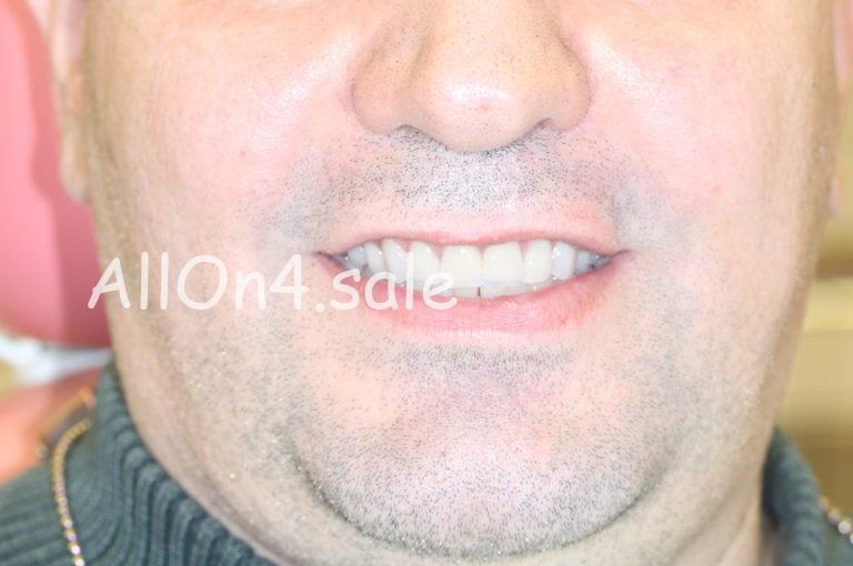 """Пациент Б. – """"Все зубы за один день"""" с немедленной нагрузкой - верх и низ"""
