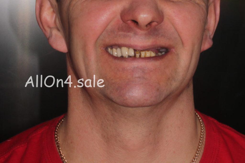 Фото ДО – Пациент И. – Протезирование при полном отсутствии верхних зубов
