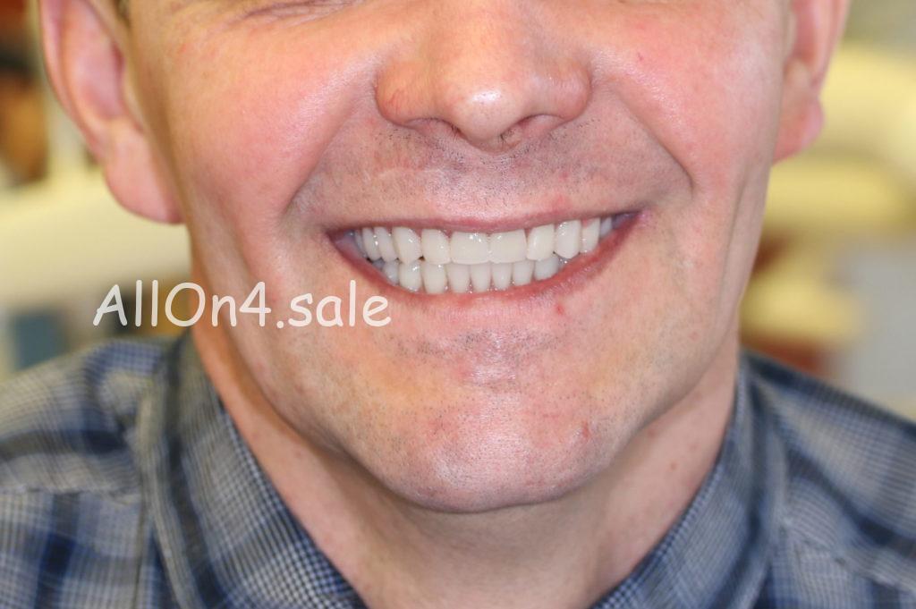 Фото ПОСЛЕ – Пациент И. – Протезирование при полном отсутствии верхних зубов