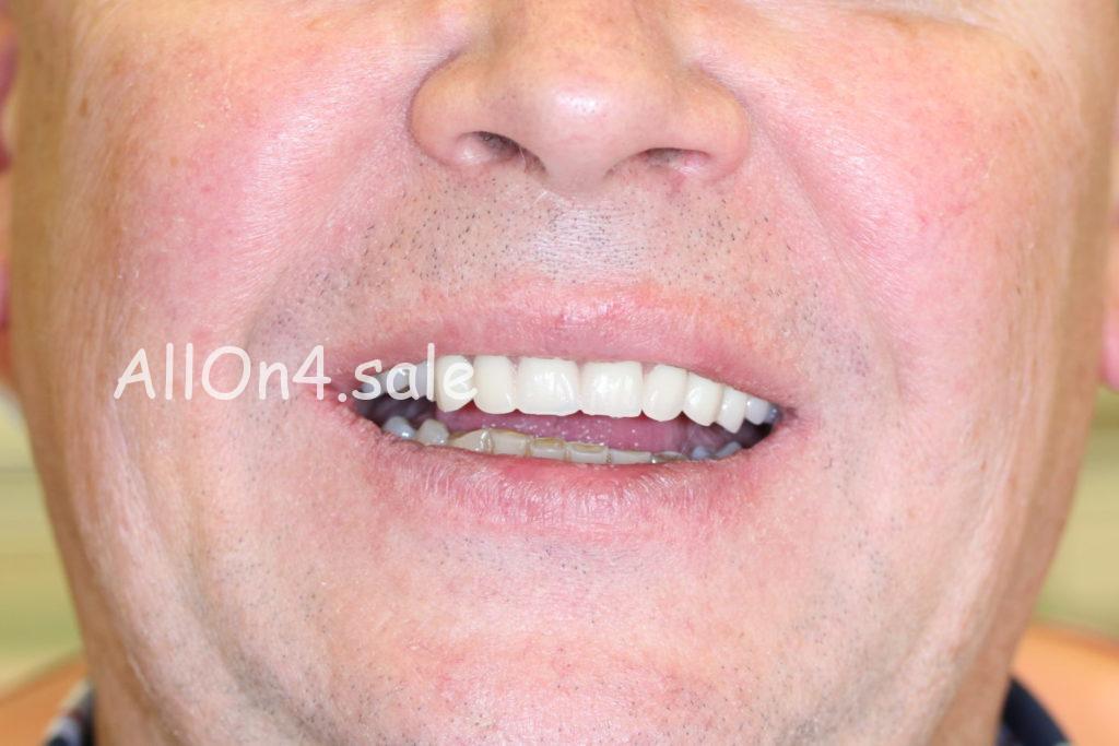 Фото ПОСЛЕ – Пациент Н. – Протезирование верхней челюсти по технологии Зубы за 1 день