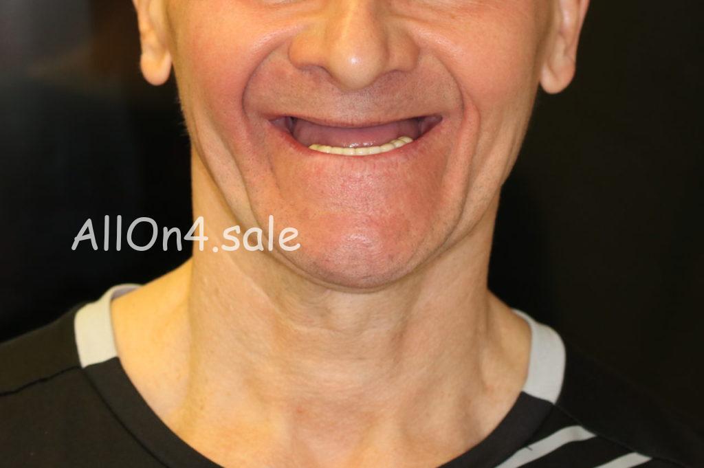 Фото ДО – Пациент М. – Пример протезирования если нет своих зубов