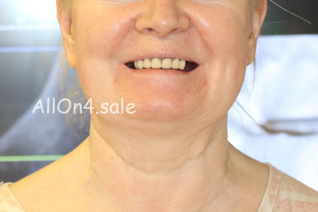 Фото ДО – Пациентка О. – Несъемные зубные протезы при частичном отсутствии зубов