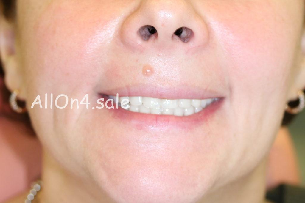 Фото ПОСЛЕ – Пациентка З. – Сделано полное протезирование зубов на имплантах
