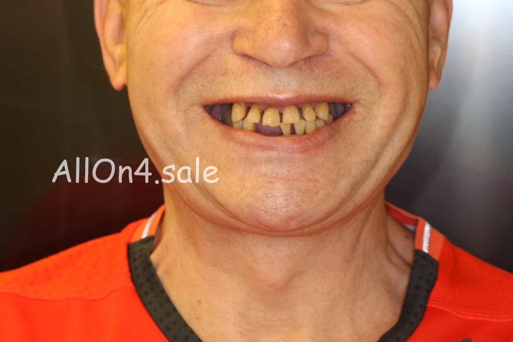 Фото ДО – Пациент Е. – Установка несъемных зубных протезов