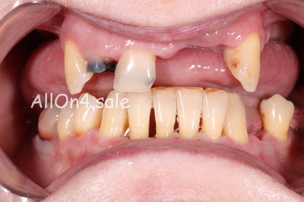 Фото ДО – Пациентка Д. – выполнены несъемные зубные протезы
