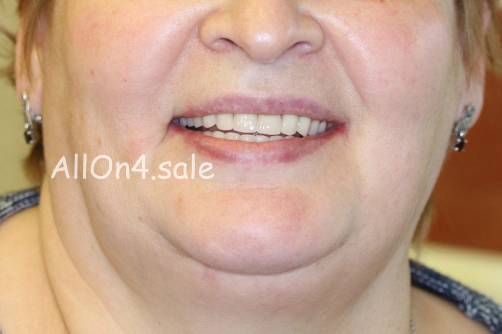 Фото ПОСЛЕ – Пациентка Д. – выполнены несъемные зубные протезы