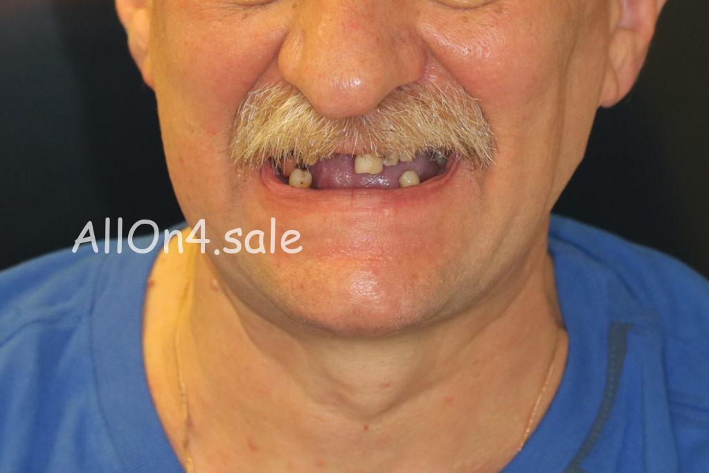 Фото ДО - Пациент Г. - Олл он фо на обеих челюстях