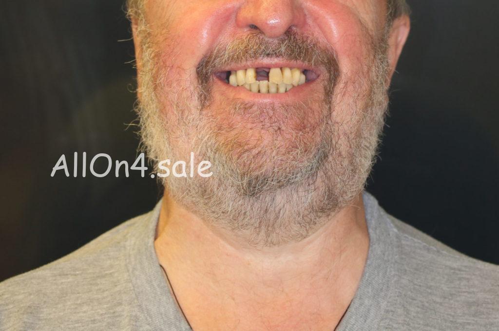 Фото ДО – Пациент П. – Установили импланты зубов за 1 день