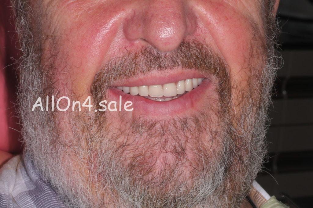 Фото ПОСЛЕ – Пациент П. – Установили импланты зубов за 1 день