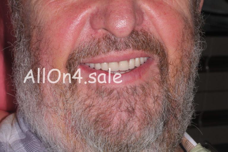 Пациент П. – Установили импланты зубов за 1 день