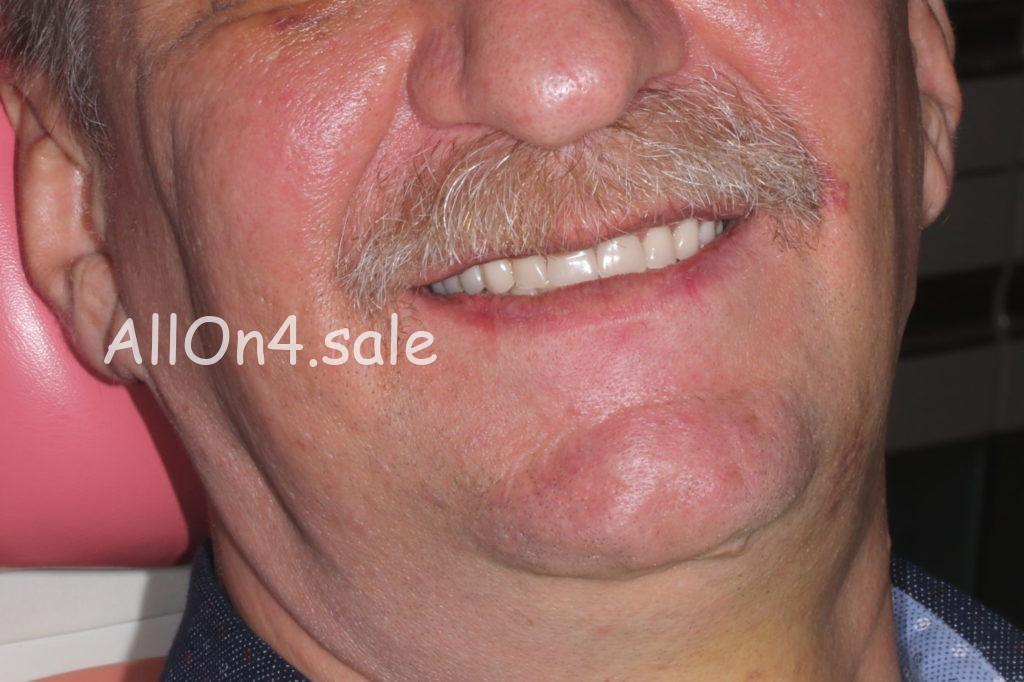 Фото ПОСЛЕ - Пациент Г. - Олл он фо на обеих челюстях