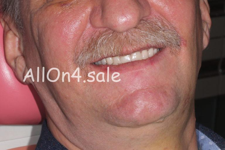 Пациент Г. - Олл он фо на обеих челюстях
