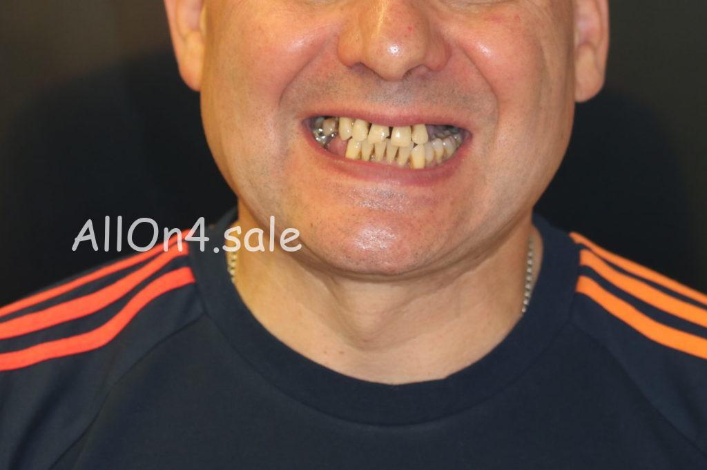 Фото ДО – Пациент К. – Выполнили зубные протезы за один день