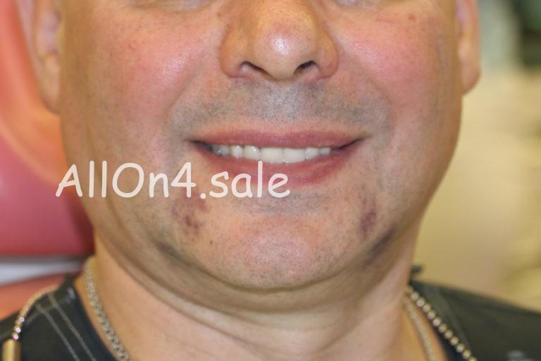 Пациент К. – Установили зубные протезы за один день
