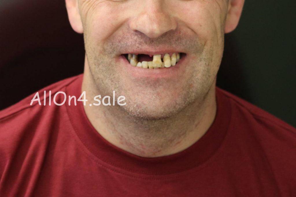 Фото ДО - Пациент Л. – Полное протезирование зубов верхнего и нижнего ряда