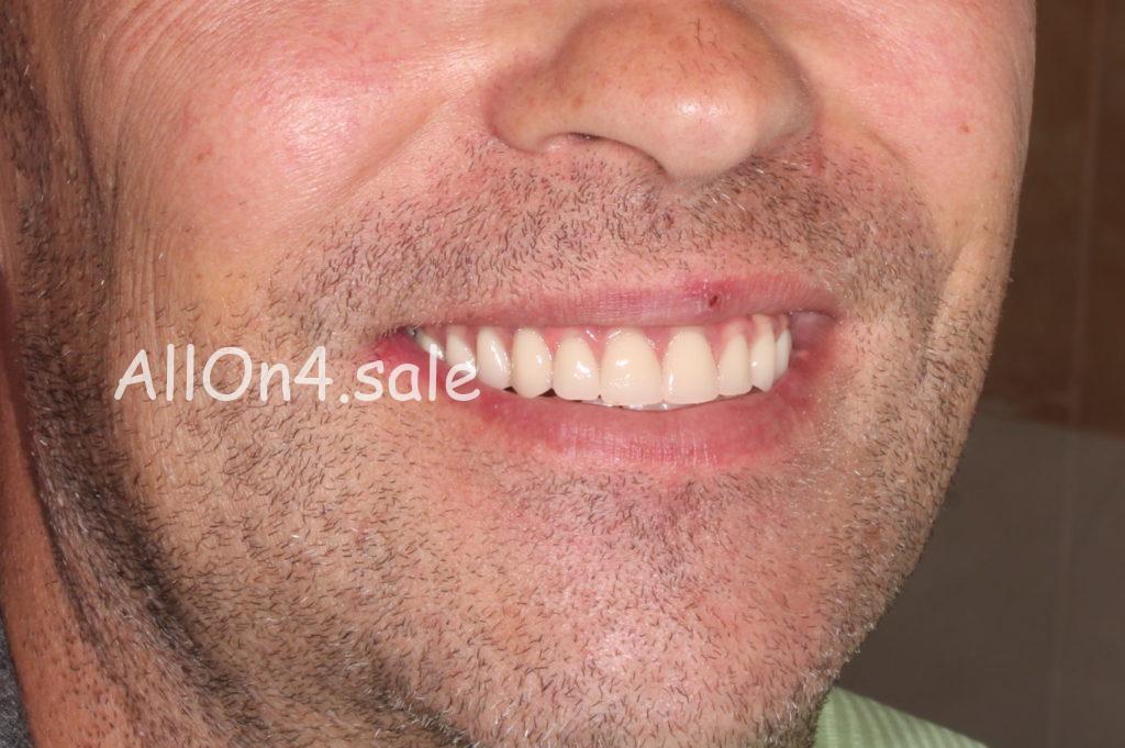 Фото ПОСЛЕ - Пациент Л. – Полное протезирование зубов верхнего и нижнего ряда