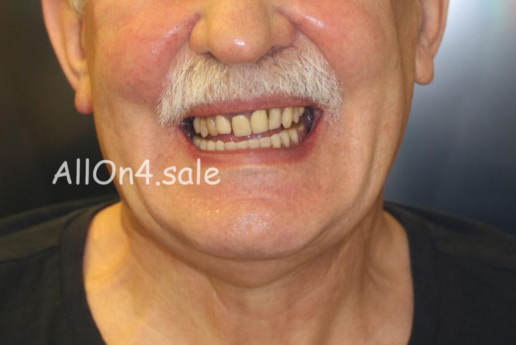 Фото ПОСЛЕ – Пациент И. – Выполнено протезирование зубов за один день