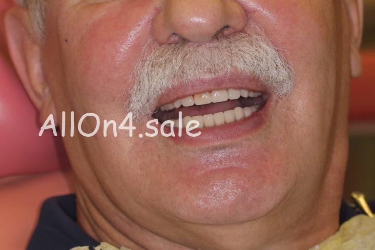 Пациент И. – Выполнено протезирование зубов за один день с немедленной нагрузкой