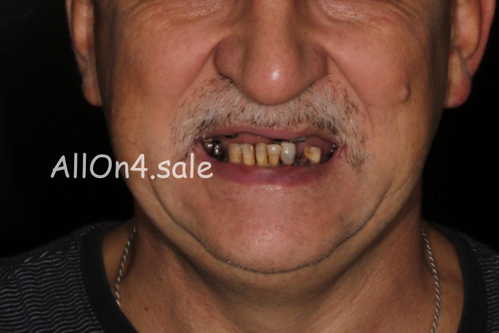 Фото ДО – Пациент З. – Протезирование верхней и нижней челюсти на 6 имплантах