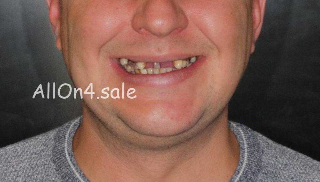 Фото ДО – Пациент А. – Несъемные протезы зубов на 4 имплантах