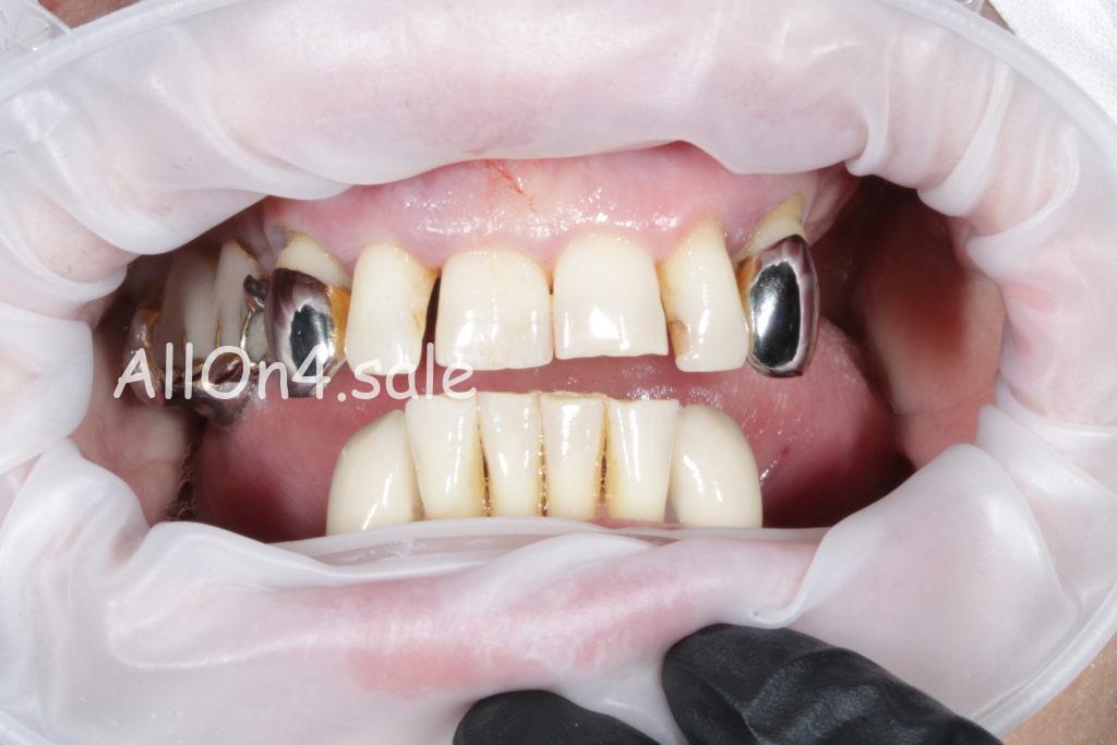 Фото ДО - Пациентка Я. – Сделали зубные протезы на четырех имплантах