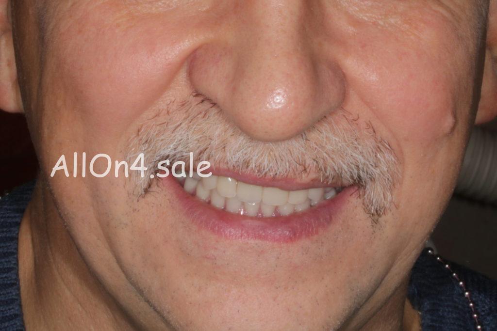 Фото ПОСЛЕ – Пациент З. – Протезирование верхней и нижней челюсти на 6 имплантах