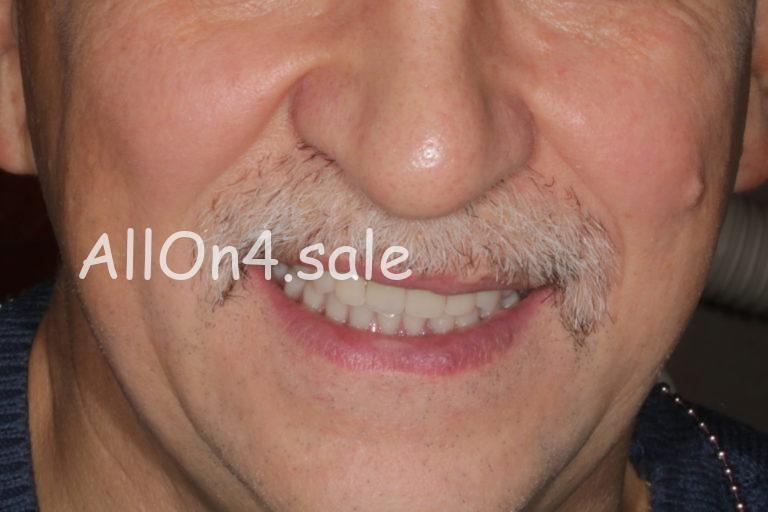 Пациент З. – Протезирование верхней и нижней челюсти на 6 имплантах