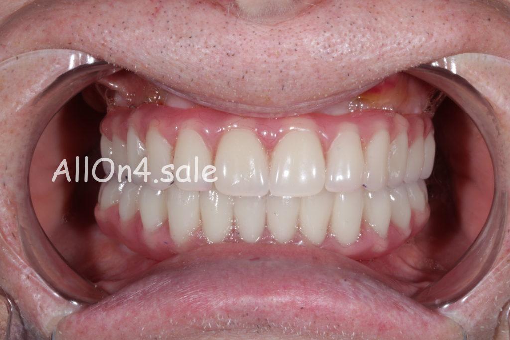 Фото ПОСЛЕ - Пациентка Я. – Сделали зубные протезы на четырех имплантах