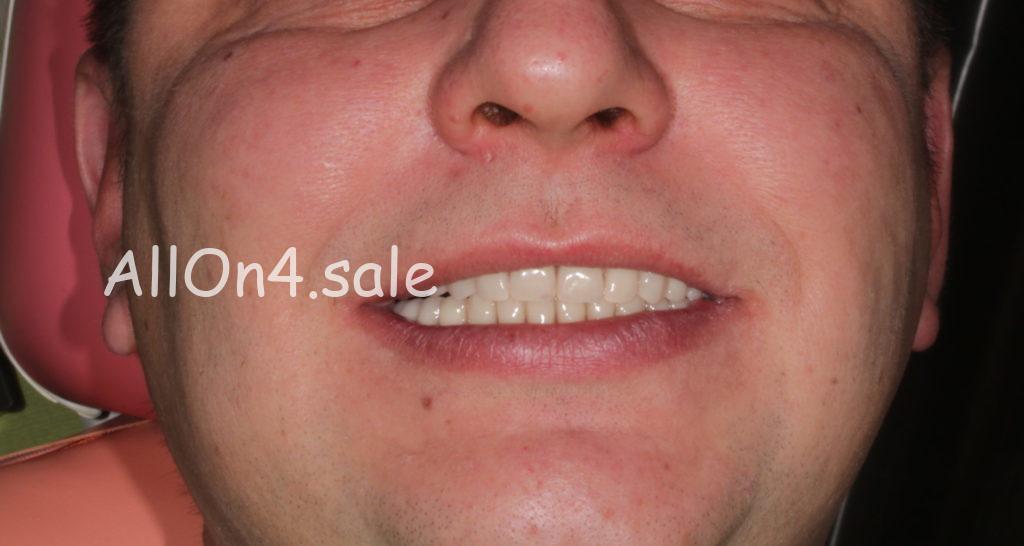 Фото ПОСЛЕ – Пациент А. – Несъемные протезы зубов на 4 имплантах
