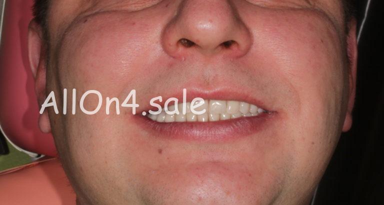 Пациент А. – Несъемные протезы зубов на 4 имплантах