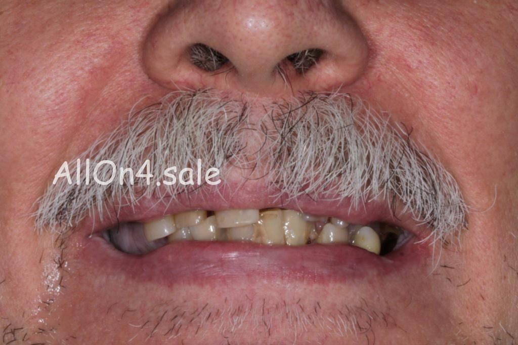 Фото ДО – Пациент Р. – Сделали несъемные зубные протезы на 6 имплантах