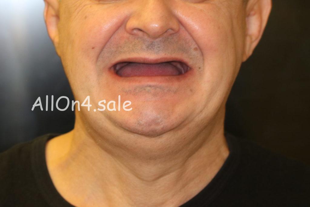 Фото ДО – Пациент Г. – протезирование, если нет зубов на обеих челюстях