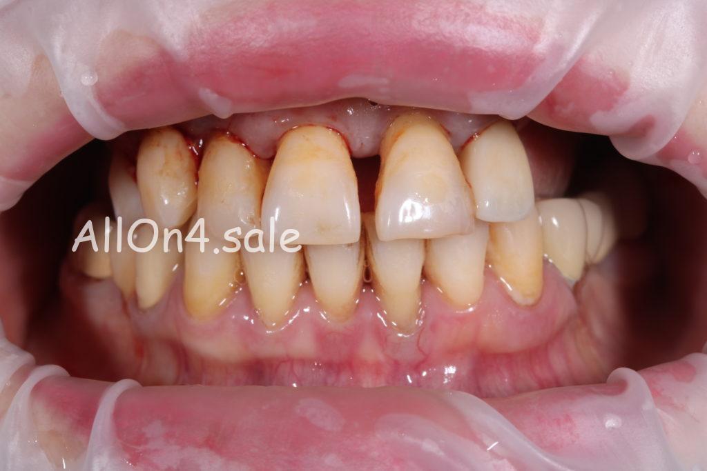 Фото ДО – Пациентка С. – Установили верхний несъемный зубной протез