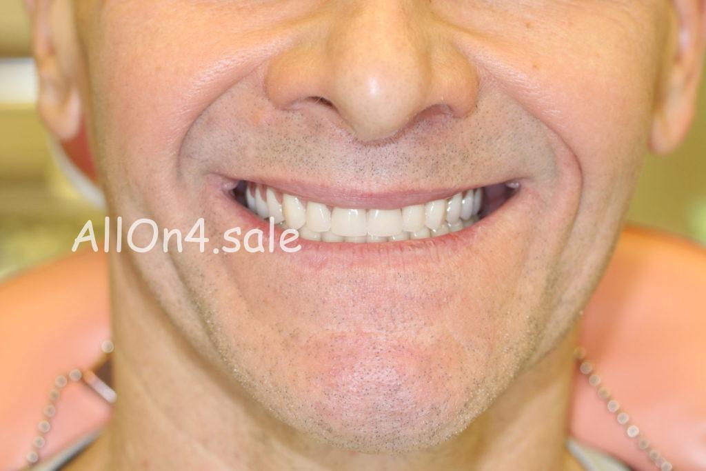 Фото ПОСЛЕ – Пациент М. – Пример протезирования если нет своих зубов