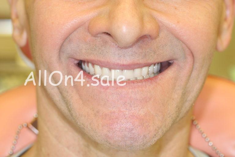 Пациент М. – Пример протезирования если нет своих зубов
