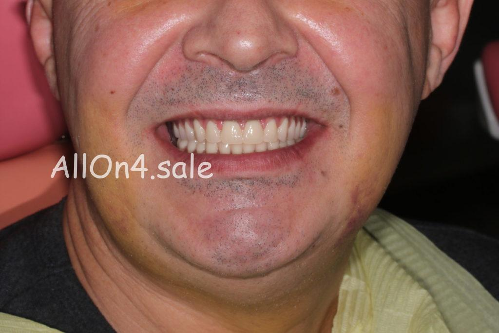Фото ПОСЛЕ – Пациент Г. – протезирование, если нет зубов на обеих челюстях