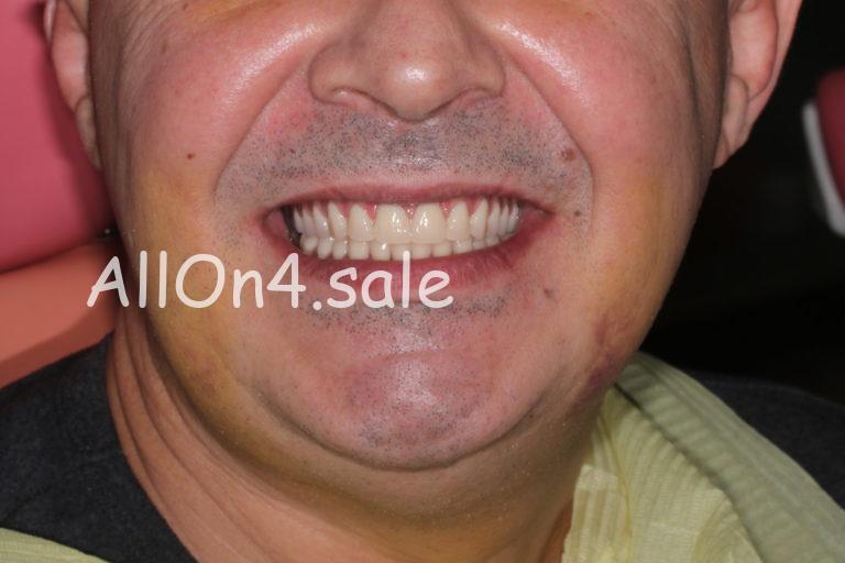 Пациент Г. – протезирование, если нет зубов на обеих челюстях