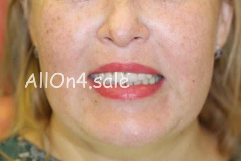 Пациентка С. – Установили верхний несъемный зубной протез