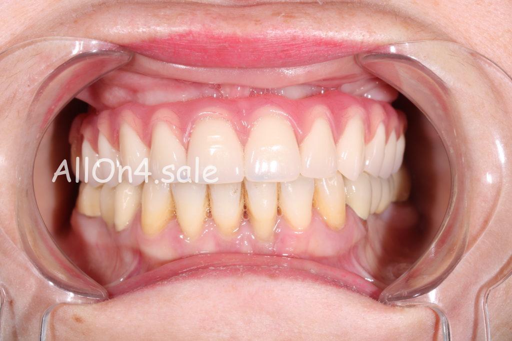Фото ПОСЛЕ – Пациентка С. – Установили верхний несъемный зубной протез