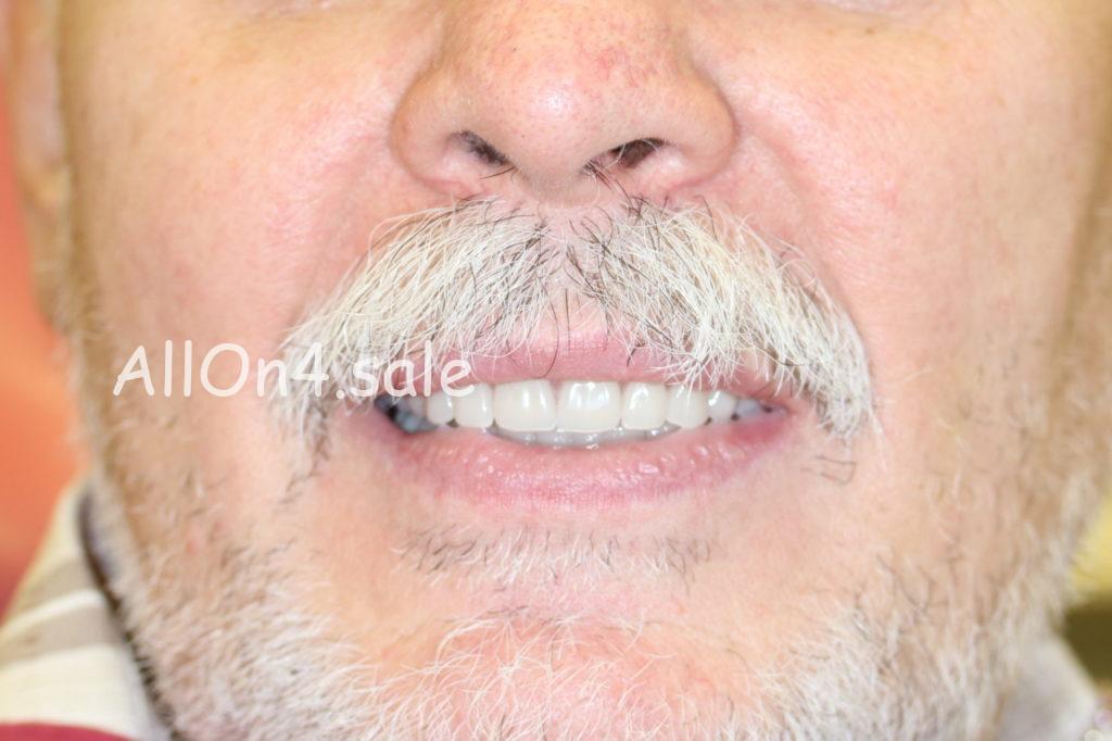 Фото ПОСЛЕ – Пациент Р. – Сделали несъемные зубные протезы на 6 имплантах