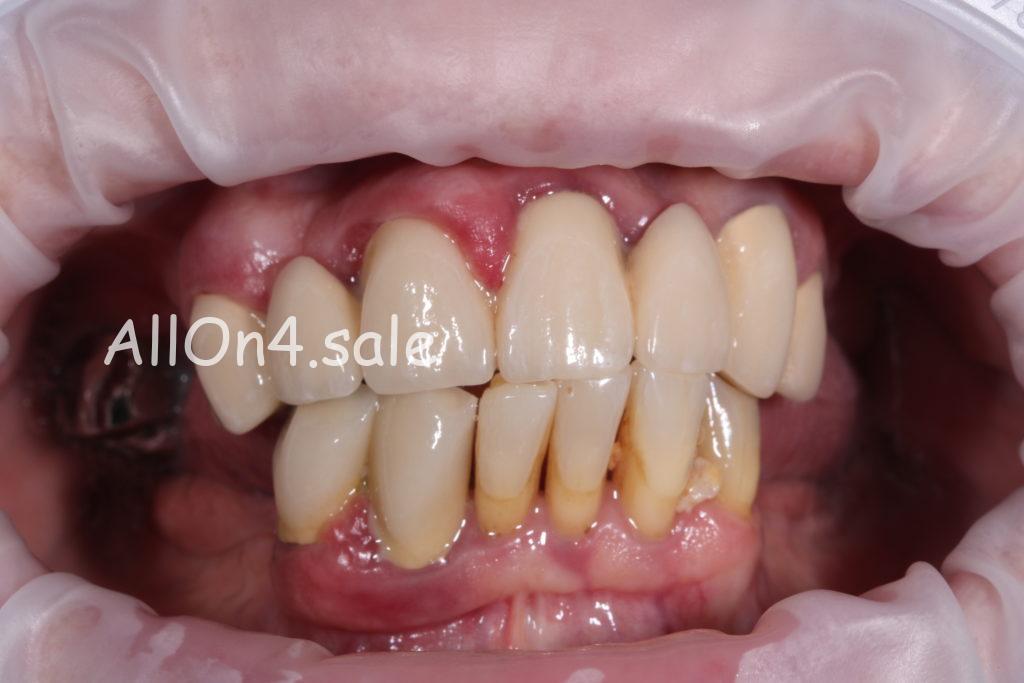 Фото ДО – Пациентка Д. – Поставили несъемный зубной протез на верхнюю и нижнюю челюсть