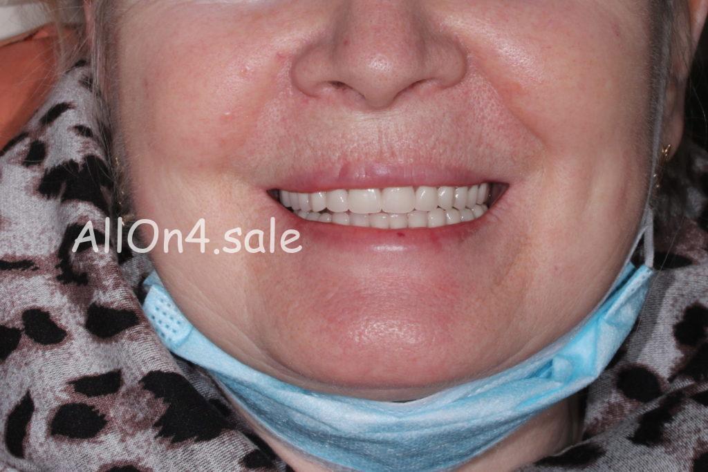 Фото ПОСЛЕ – Пациентка О. – Несъемные зубные протезы при частичном отсутствии зубов