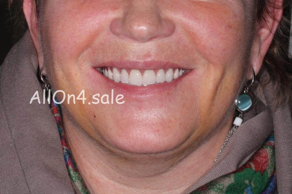 Фото ПОСЛЕ – Пациентка Д. – Поставили несъемный зубной протез на верхнюю и нижнюю челюсть
