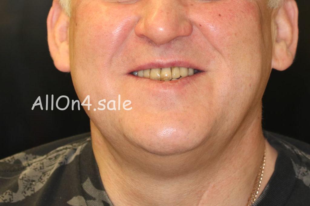 Фото ДО – Пациент У. – Поставили несъемные зубные протезы