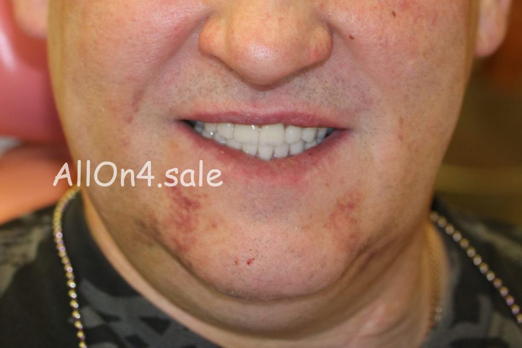 Фото ПОСЛЕ – Пациент У. – Поставили несъемные зубные протезы