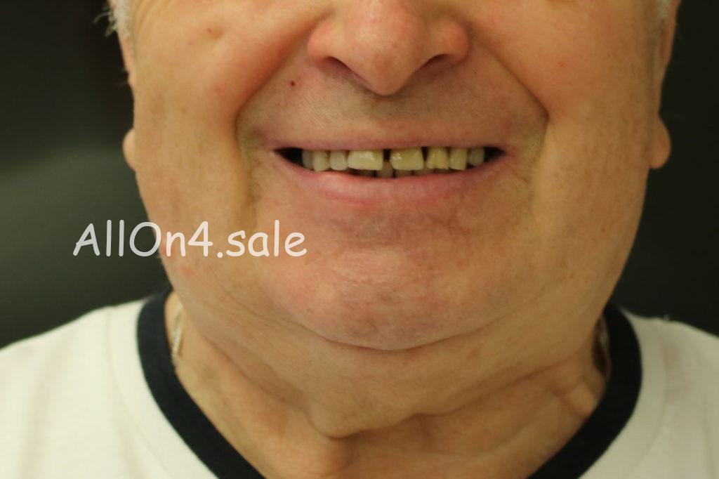 Фото ДО – Пациент Д. – протезирование обеих челюстей по протоколу All on 4