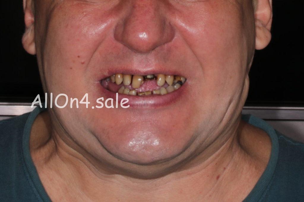 Фото ДО - Пациент Ф. – Установка несъемных зубных протезов нового поколения