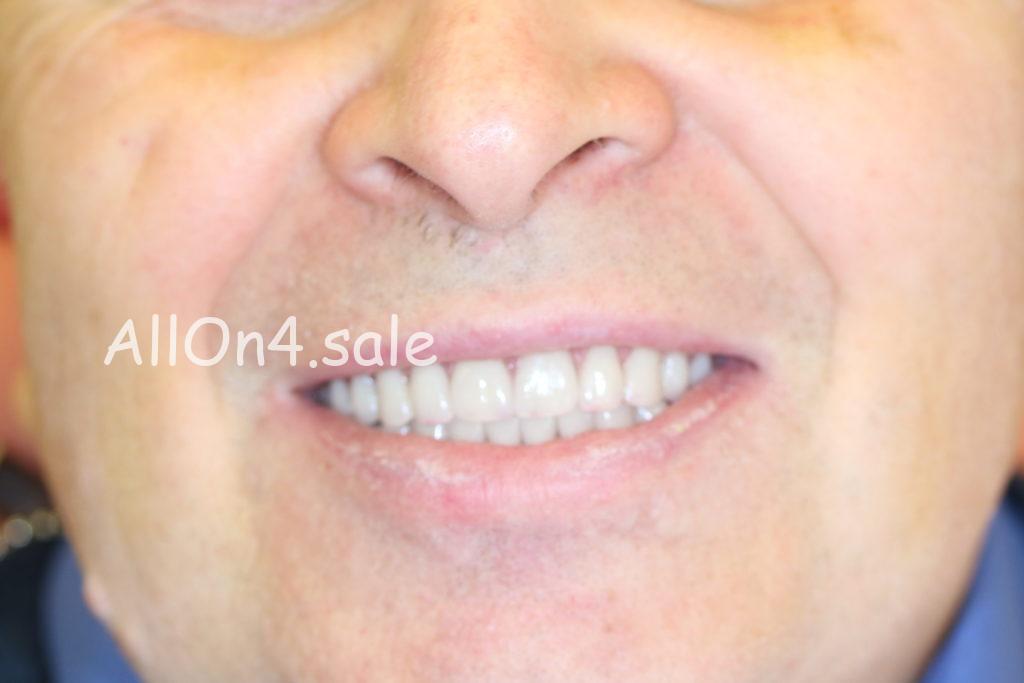Фото ПОСЛЕ – Пациент Д. – протезирование обеих челюстей по протоколу All on 4
