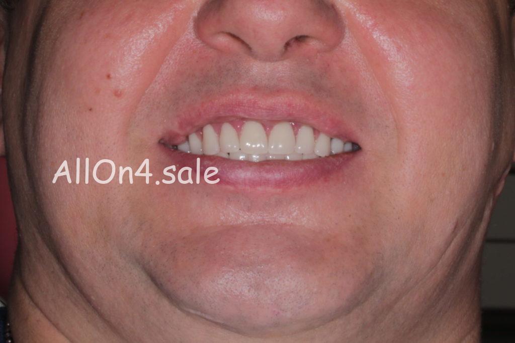 Фото ПОСЛЕ - Пациент Ф. – Установка несъемных зубных протезов нового поколения